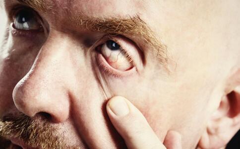 如何保护眼睛 保护眼睛的方法 怎么保护眼睛