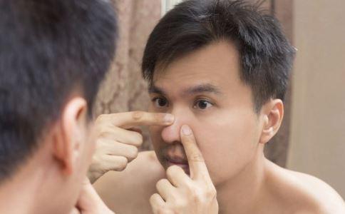 男性皮肤粗糙是为什么 男性皮肤粗糙的原因是什么 男人怎么正确护肤