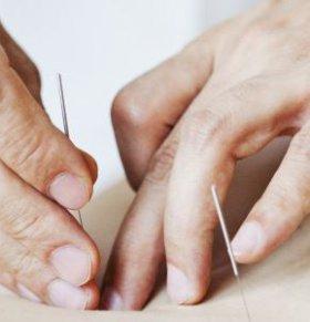 针灸减肥穴位 针灸减肥扎哪些穴位 针灸减肥常用穴位
