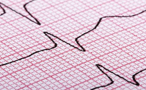 检查心脏病需要做哪些检查 常见这7种 健康常识 图1
