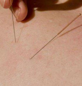 针灸有哪些作用 中医针灸的作用有哪些 针灸后要注意哪些