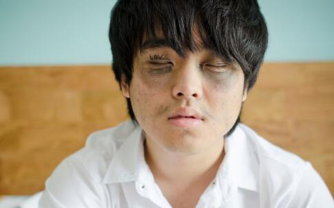 中医怎么去黑眼圈 怎么彻底去除黑眼圈 黑眼圈怎么消