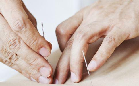 针灸的注意事项 针灸注意事项 针灸治疗注意事项