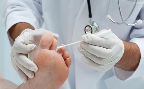 水疱型脚气怎么治疗 水疱型脚气用药注意什么 怎样预防水疱型脚气