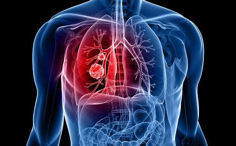 邝美宝因癌症离世 如何预防肺癌 怎样预防肺癌