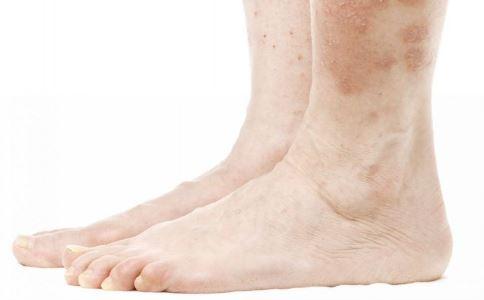 公立医院天价鞋垫 天价鞋垫有用吗 脚部容易发生哪些疾病