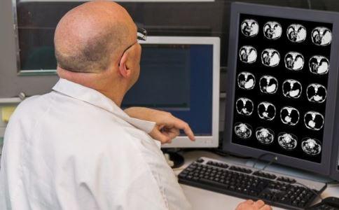 将癌症传给4个人 器官移植会传染癌症吗 器官移植会传染疾病吗