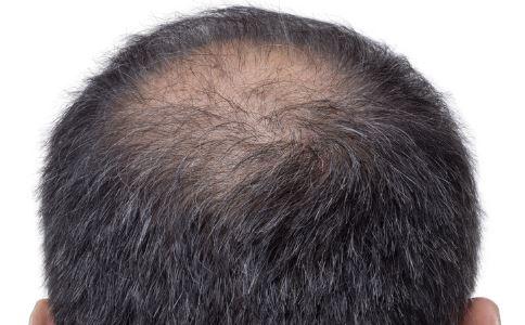 严重脱发 男人肾虚的6大症状