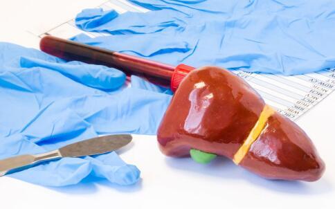 保肝护肝 保肝方法 肝病保健