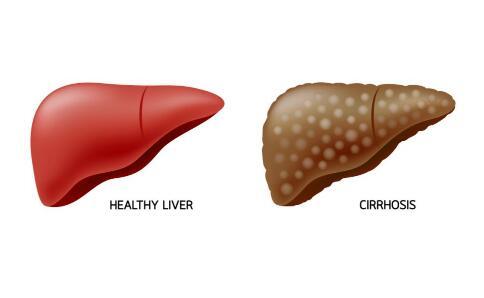 准备 性生活 患者 乙肝 病毒 肝功 治疗 查验 传染 一方 导致