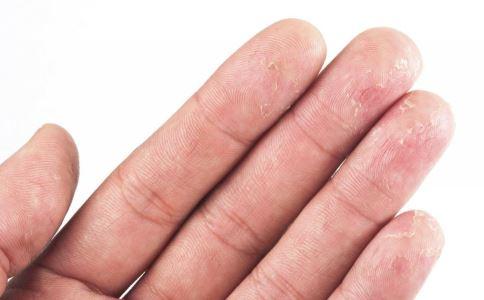 常见过敏原有哪些 如何预防过敏 如何避免过敏原