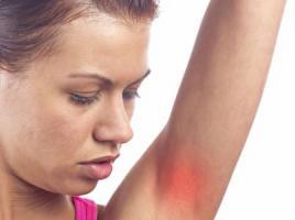 过敏性鼻炎常见的三大过敏原