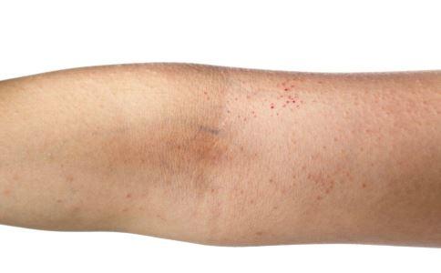 遗传过敏性皮炎是什么 遗传过敏性皮炎是怎么引起的 遗传过敏性皮炎有哪些症状表现