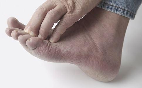 接触性皮炎的症状 接触性皮炎是怎么引起的 接触性皮炎注意事项