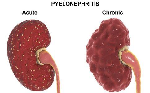 肾病的原因 肾病的症状 如何预防肾病