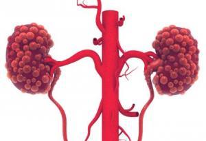 肾癌是什么原因造成的 三招有效预防肾癌