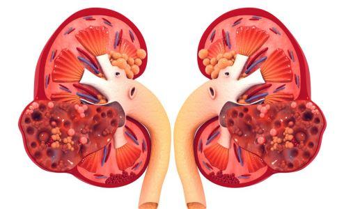 肾结石不能吃哪些食物 肾结石不能吃的食物有哪些 肾结石不能吃什么