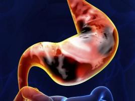 慢性胃炎的初期症状是什么