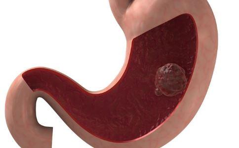 胃溃疡的症状表现有哪些 胃溃疡有哪些症状 怎么诊断胃溃疡