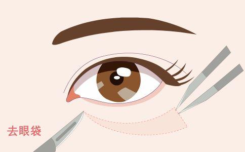 松弛型眼袋做激光好吗 激光祛眼袋效果如何 激光祛眼袋怎么样