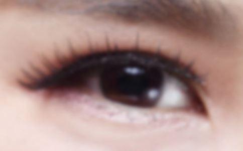 祛眼袋 祛眼袋的方法 祛眼袋的手术