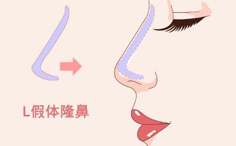 男性为何隆鼻 男性隆鼻的方法有哪些 男性隆鼻好不好