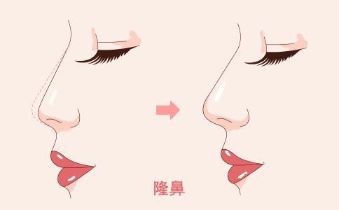 毛孔粗大怎么办 光子嫩肤能缩小毛孔吗 哪些方法可以缩小毛孔