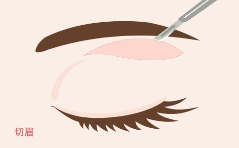 注射玻尿酸去法令纹效果好吗 注射玻尿酸可以去除法令纹吗 玻尿酸去法令纹的效果怎么样