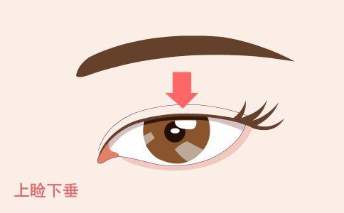 下颌角整形手术安全吗 下颔角进行整形是不是安全的 下颔角整形要注意什么啊