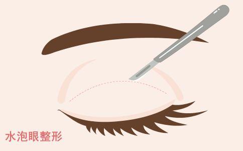 严重脱发需要植发吗 哪些人不适合植发 植发有人群要求吗