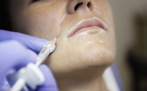 哪些人不能激光祛疤 激光去痘疤效果如何 激光去痘疤有什么优势