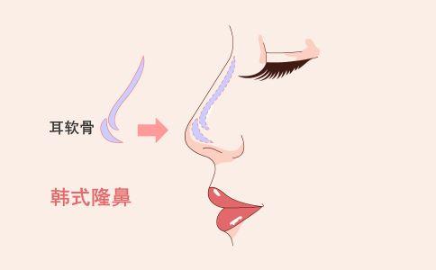 眼睫毛种植 种植眼睫毛术前准备 种植眼睫毛的不适合人群