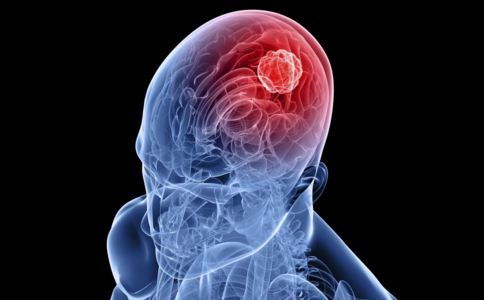 预防脑出血吃什么好 怎样才能预防脑出血 脑出血要吃什么