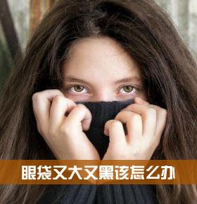有大眼袋怎么办 眼袋又黑又大 眼袋黑大