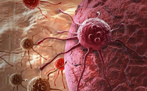 斯科特因癌症去世 癌症产生的原因 如何预防癌症