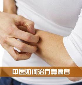 中医医治荨麻疹 荨麻疹中医怎样分型 荨麻疹中医药方