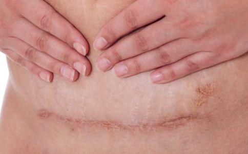 剖腹产后疤痕怎么淡化 淡化疤痕的方法 产后疤痕怎么淡化