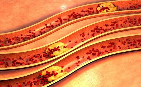 预防血栓吃哪些食物好 吃哪些食物可以预防血栓 吃黑色食物可以预防血栓吗