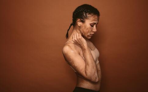 青少年容易患上白癜风的病因有哪些 怎么预防白癜风 白癜风该怎么预防