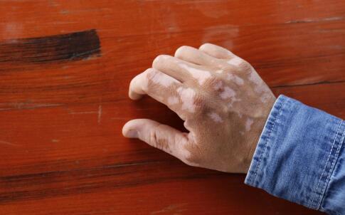 白癜风患者要警惕诱发这些并发症