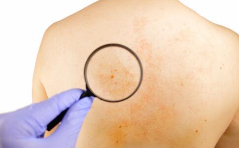 黄褐斑是哪些因素引起的 黄褐斑如何预防 黄褐斑怎么预防