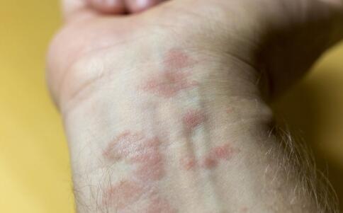 鱼鳞病日常要注意哪些 鱼鳞病如何治疗 鱼鳞病的偏方是什么