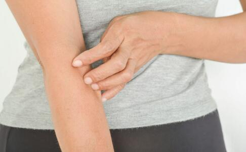 成人痒疹是什么样子的 痒疹的症状是什么 成人痒疹图片
