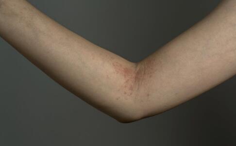 导致甲沟炎的原因有哪些 怎么预防甲沟炎 甲沟炎的危害有哪些