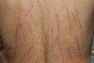 如何治疗老年人皮肤瘙痒