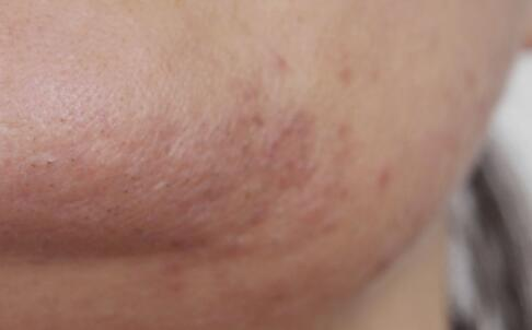女性脸上长黑斑的原因是什么