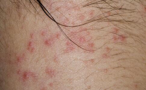 疱疹为什么会不断复发 疱疹有哪些症状 什么是疱疹