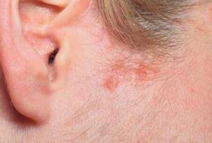 秋季预防皮肤瘙痒牢记这3大原则