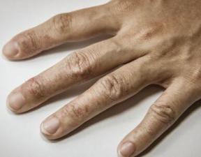 引起灰指甲的原因_灰指甲的治疗方法__99健康网