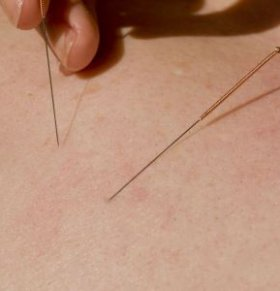 骨折怎么办 针灸能治疗骨折吗 哪些人不能针灸